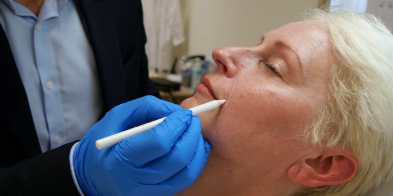 Esztétikai beavatkozások okosan avagy őszintén a botoxról, hialuronról és társaikról